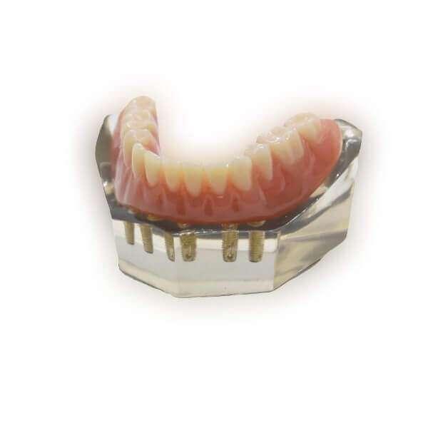 Protheses sur implants dentaires
